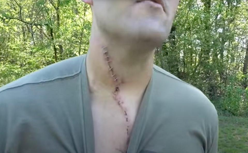 <p>Man left with horror injuries after gun exploded in his face</p> (YouTube/KentuckyBallistics)