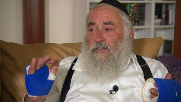 PHOTO: Rabbi Yisroel Goldstein speaks with ABC News after he was shot at the Chabad in Poway Synagogue outside of San Diego, Calif., April 28, 2019. (ABC News)