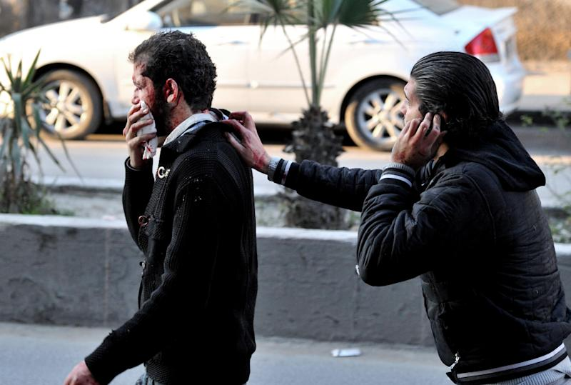 In this photo released by the Syrian official news agency SANA, a Syrian helps a man who was injured after two cars bombs exploded, at Jaramana neighborhood, in the suburb of Damascus, Syria, Wednesday, Nov. 28, 2012. (AP Photo/SANA)