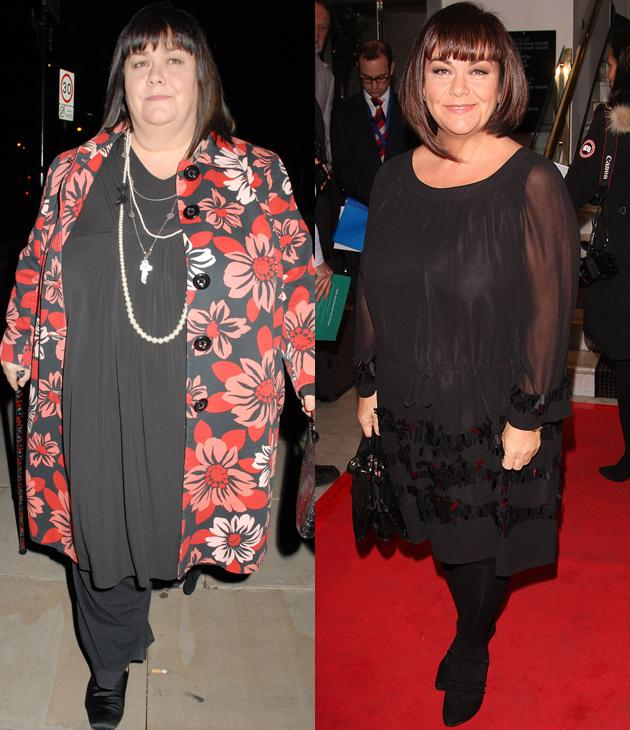Dawn French weight loss: The comedic actress has had to give up a lot of things she loves for her healthier and hotter figure. Dawn owes her four-and-a-half stone weight loss to swapping chips for salad and only eating chocolate occasionally.