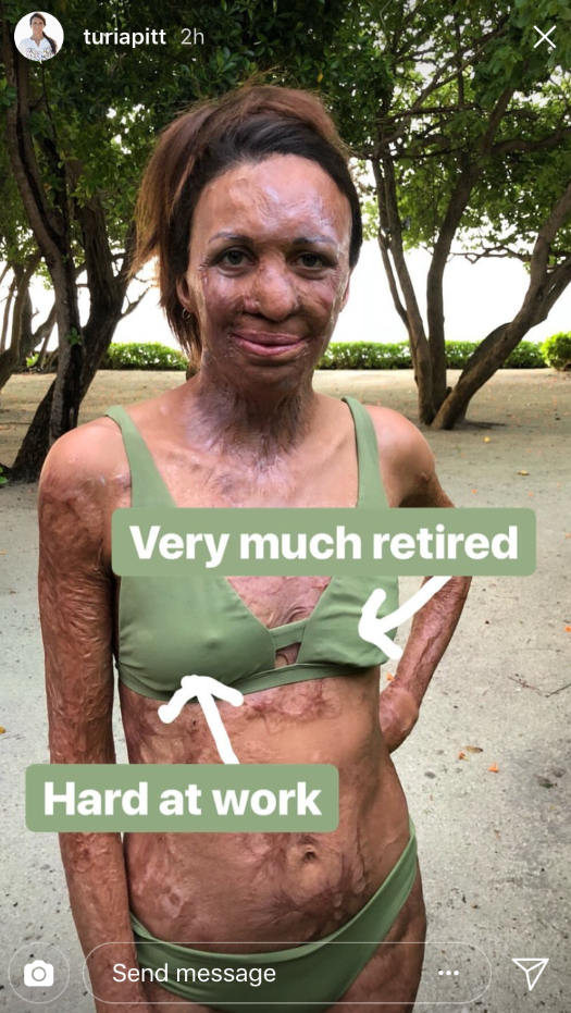 Turia Pitt has shared a brutally honest photo about the realities of breastfeeding. Source: Instagram/TuriaPitt