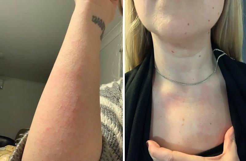 rashes on a woman's chest from fibromyalgia