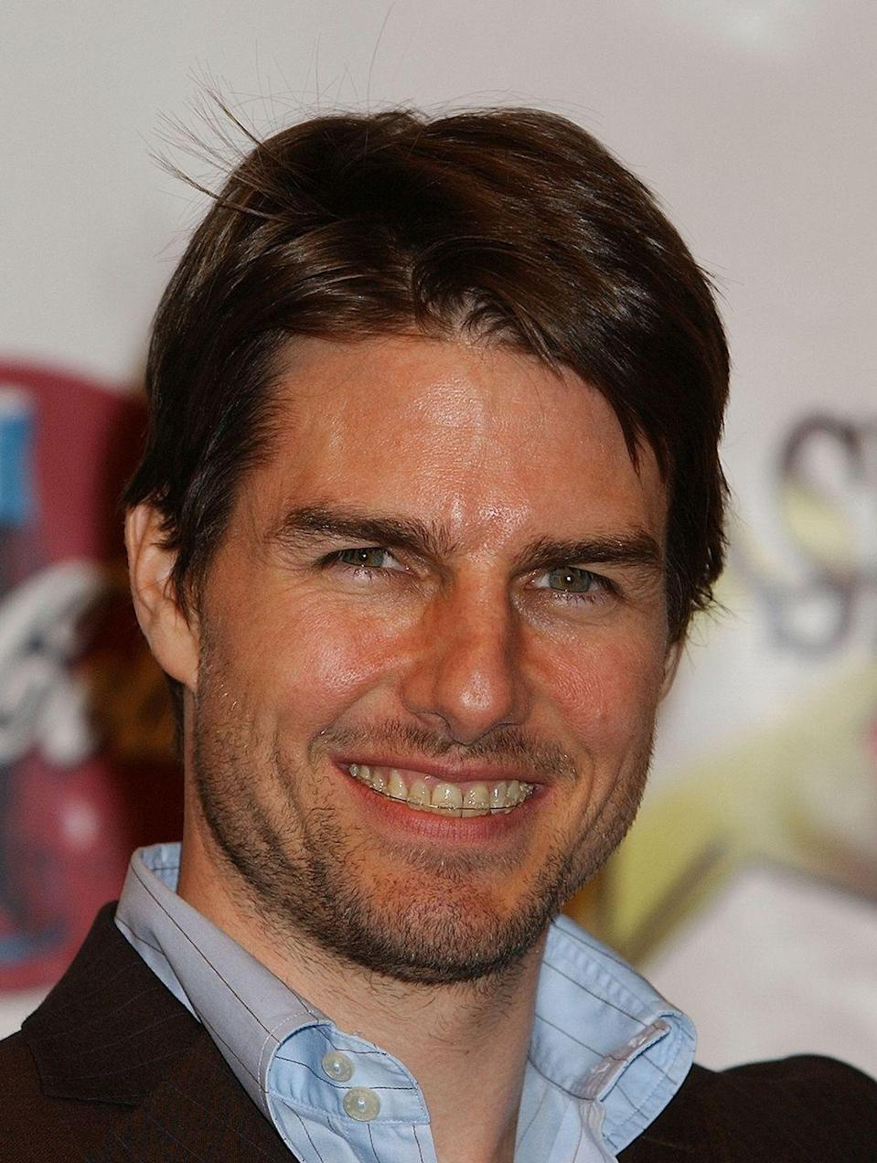 """<p>Yes, even Tom Cruise had dental wear. The actor known for his gorgeous smile went with <a href=""""https://www.elle.com/culture/g8107/celebrities-with-braces-faith-hill/?slide=4"""" rel=""""nofollow noopener"""" target=""""_blank"""" data-ylk=""""slk:nearly invisible retainers"""" class=""""link rapid-noclick-resp"""">nearly invisible retainers</a> and only wore them for a few months.</p>"""