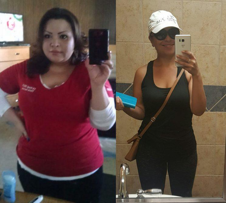 Before and after photos of Laura Rosales, after losing 90 pounds.