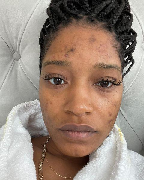 "<p>Keke Palmer took to Instagram to post an emotional selfie that showed the actress without make-up on, and revealing her acne scars as a result of PCOS. The 27-year-old discussed her experience of living with Poly Cystic Ovarian Syndrome and her struggles with discovering the real cause of her acne after undergoing two rounds of prescribed Accutane medication with no results. </p><p>With her hair back in braids, Palmer looked natural and stunning, acne scars included. 'My skin has made me sad many nights but I do not give up on myself. I know this is not me and my body has been looking for help,' she told her 10.1 million Instagram followers.</p><p><a href=""https://www.instagram.com/p/CIRMIqODTtF/?utm_source=ig_embed&utm_campaign=loading"" rel=""nofollow noopener"" target=""_blank"" data-ylk=""slk:See the original post on Instagram"" class=""link rapid-noclick-resp"">See the original post on Instagram</a></p>"