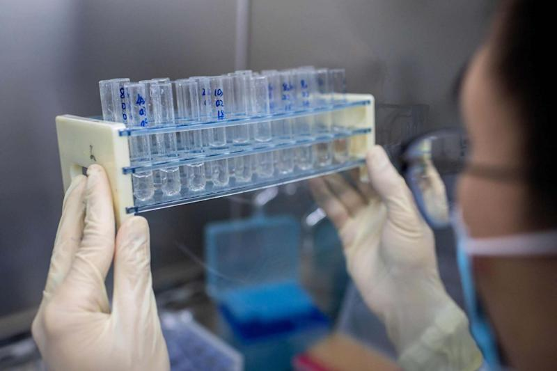 In this file picture taken on April 29, 2020, an engineer works at the Quality Control Laboratory on an experimental vaccine for the COVID-19 coronavirus at the Sinovac Biotech facilities in Beijing: AFP via Getty Images