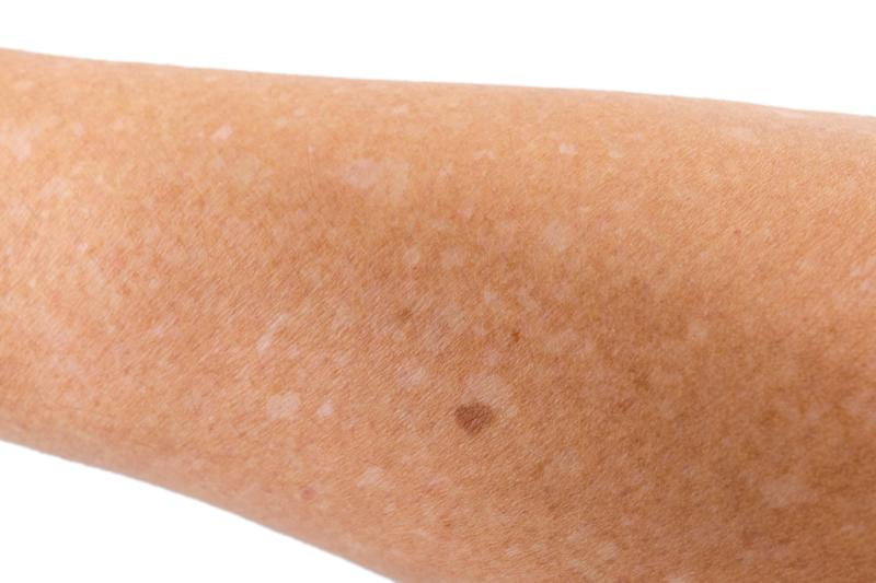 Small white spots on the skin is a condition known as idiopathic guttate hypomelanosis. [Photo: Getty]
