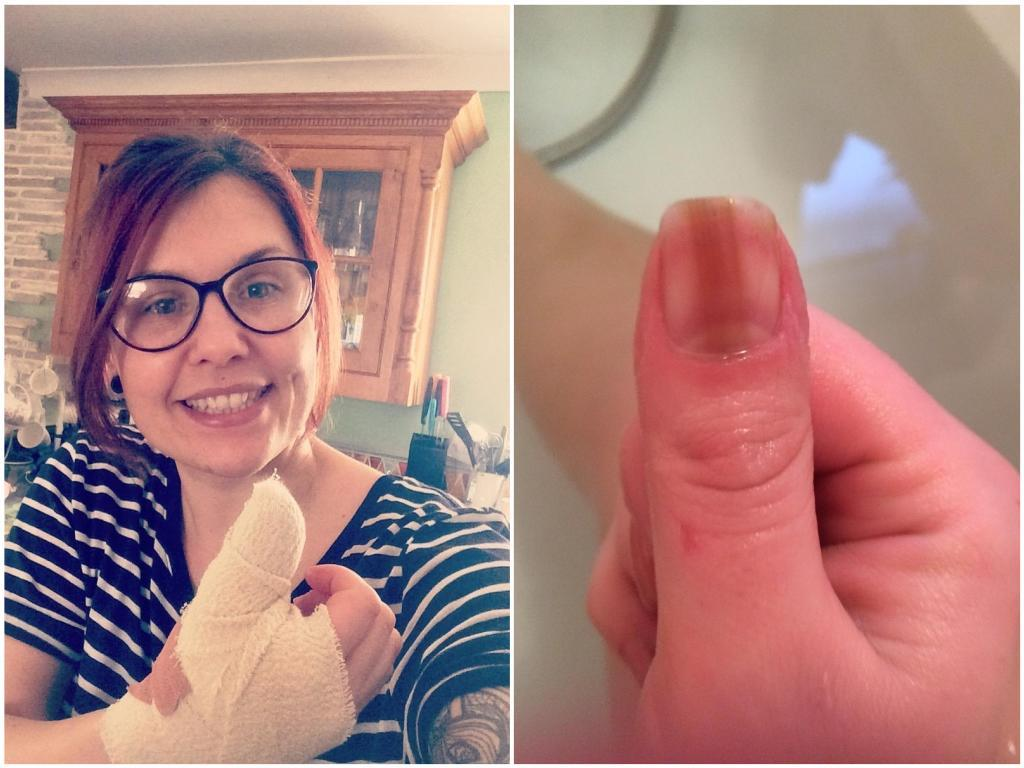 Alana Severs has revealed a line on her fingernail was a sign of cancer. (SWNS)