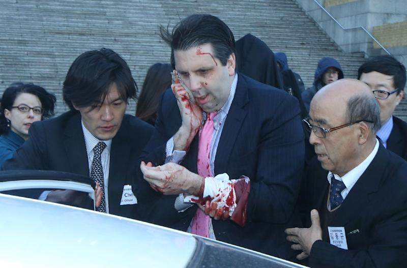 US ambassador to South Korea Mark Lippert (C) covers a wound to his face after he was attacked at the Sejong Cultural Institute in Seoul on March 5, 2015 (AFP Photo/)