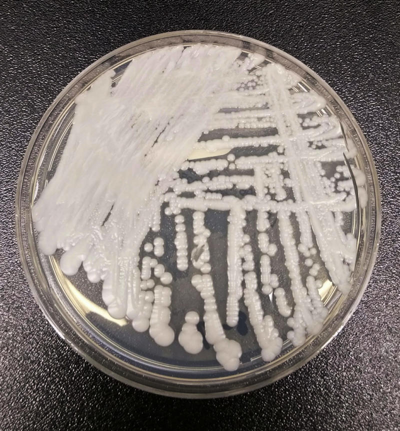 The Centers for Disease Control and Prevention is warning about a deadly new fungal superbug called Candida auris fungus which was first seen in a patient in 2009, in Japan. Scientists say it can be hard to identify with standard lab tests, and now a new study suggests climate change may be fueling it. (Photo: Shawn Lockhart/CDC via AP)