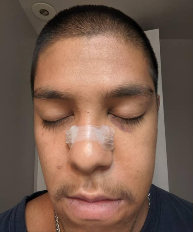 David Gomez, 24, was knocked unconscious and suffered a broken nose, cheekbone and orbital bone, an injury to his hip and a concussion in an attack on Toronto Island on June 5, according to a crowdfunding campaign that has raised nearly $49,000 for him. (Submitted by David Gomez - image credit)