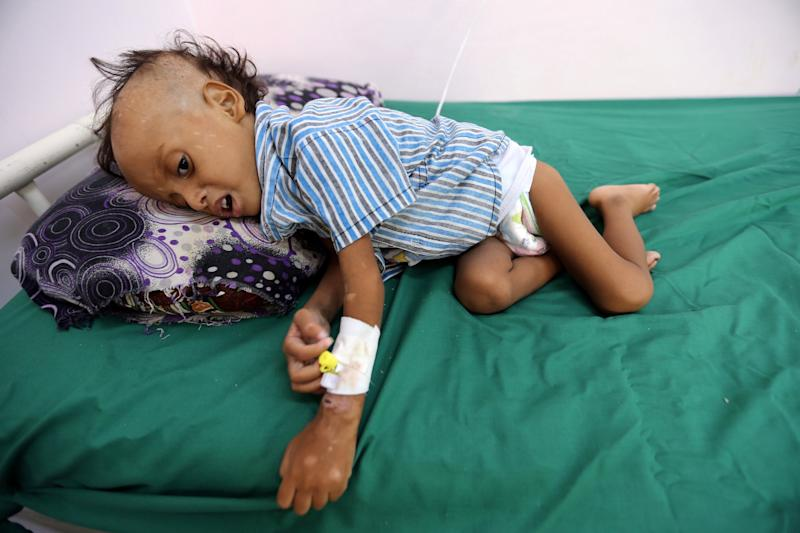 A Yemeni boy, two, is treated for malnutrition earlier this month: Reuters