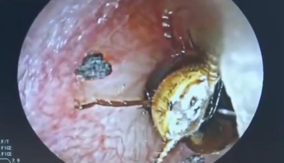 A cockroach (pictured) was discovered inside his ear. Source: AsiaWire/ Australscope