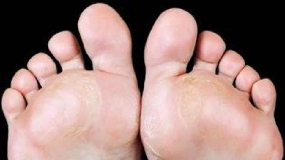 #HealthBytes: Causes, symptoms, and remedies for corns and calluses