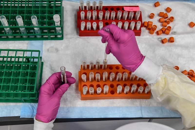 A lab technician sorts blood samples for COVID-19 vaccination study at the Research Centers of America in Hollywood, Florida on August 13, 2020. (Photo by CHANDAN KHANNA / AFP) (Photo by CHANDAN KHANNA/AFP via Getty Images)