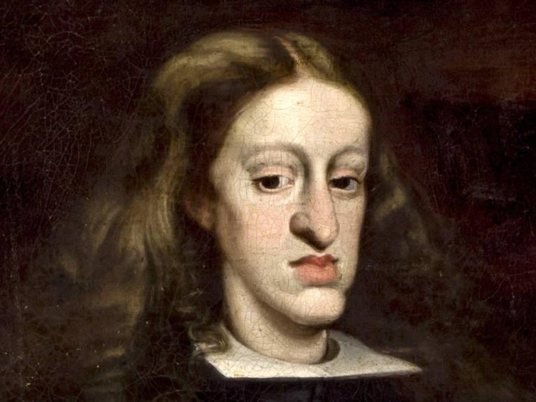 Charles II, the last of the Habsburg line, was afflicted by the facial deformity: Kunsthistorisches Museum