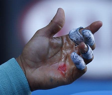 An injury is seen on the hand of Rafael Nadal of Spain during his men's singles quarter-final tennis match against Grigor Dimitrov of Bulgaria at the Australian Open 2014 tennis tournament in Melbourne January 22, 2014. REUTERS/Bobby Yip