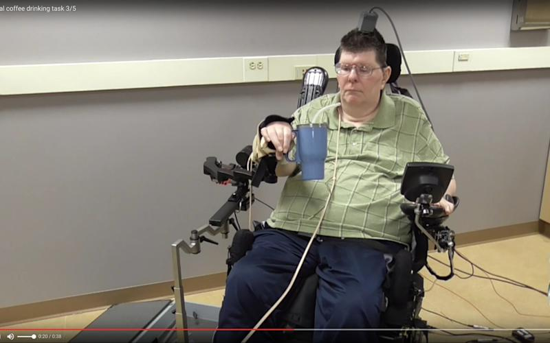 The device gives hope to millions of disabled and paralysed people - Credit: Case Western Reserve University