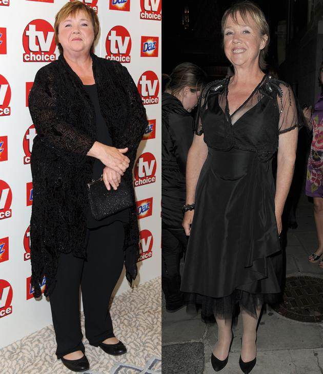 Pauline Quirke weight loss: Pauline lost an impressive eight stone this year and is all smiles following her success. Her slimming mission started when she signed up to the Lighter Life weight loss plan and the rest is history.
