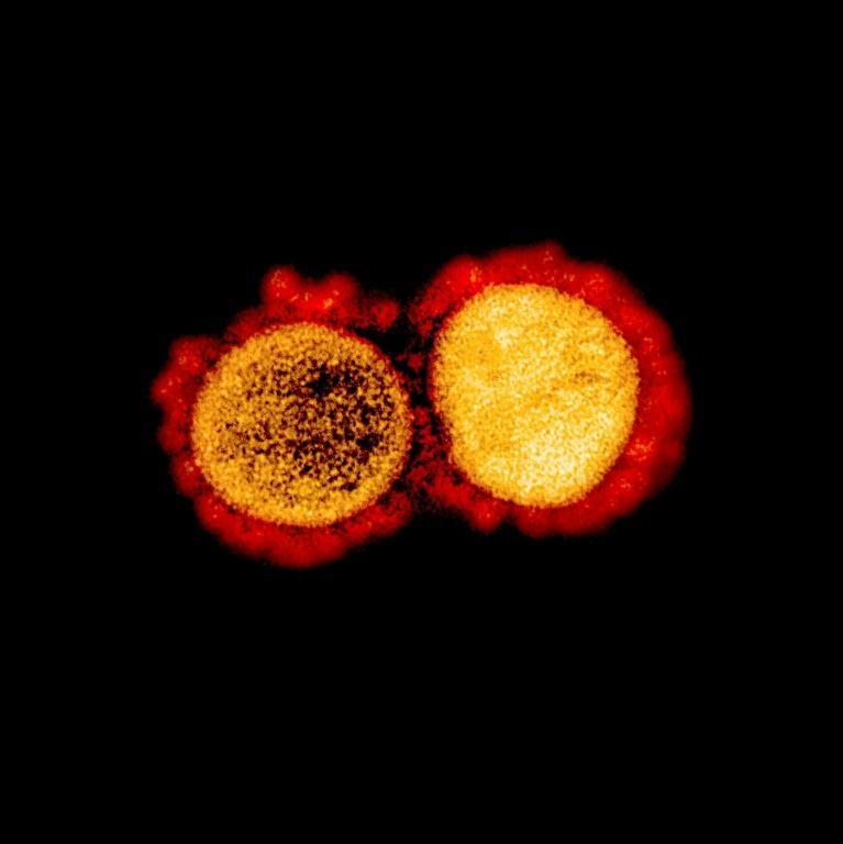 Aa transmission electron micrograph of SARS-CoV-2 virus particles, isolated from a patient,captured and color-enhanced