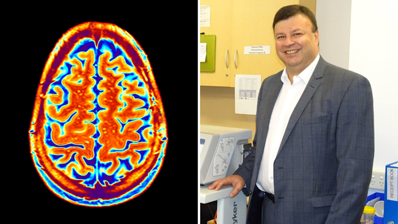 Pictured: Neurosurgeon Stephen Santoreneos and a brain scan. Images: Supplied, Getty