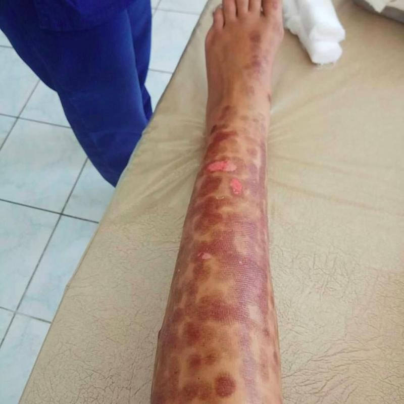 Both legs were left covered in welts. Source: Facebook