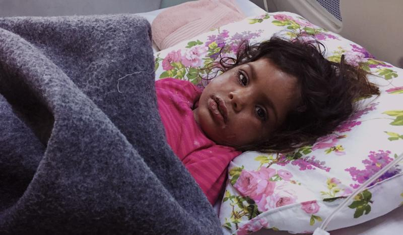 Toddler age girl lies helplessly with blisters after her face was hit with chemicals in a mortar attack. (Photo: Ash Gallagher for Yahoo News)