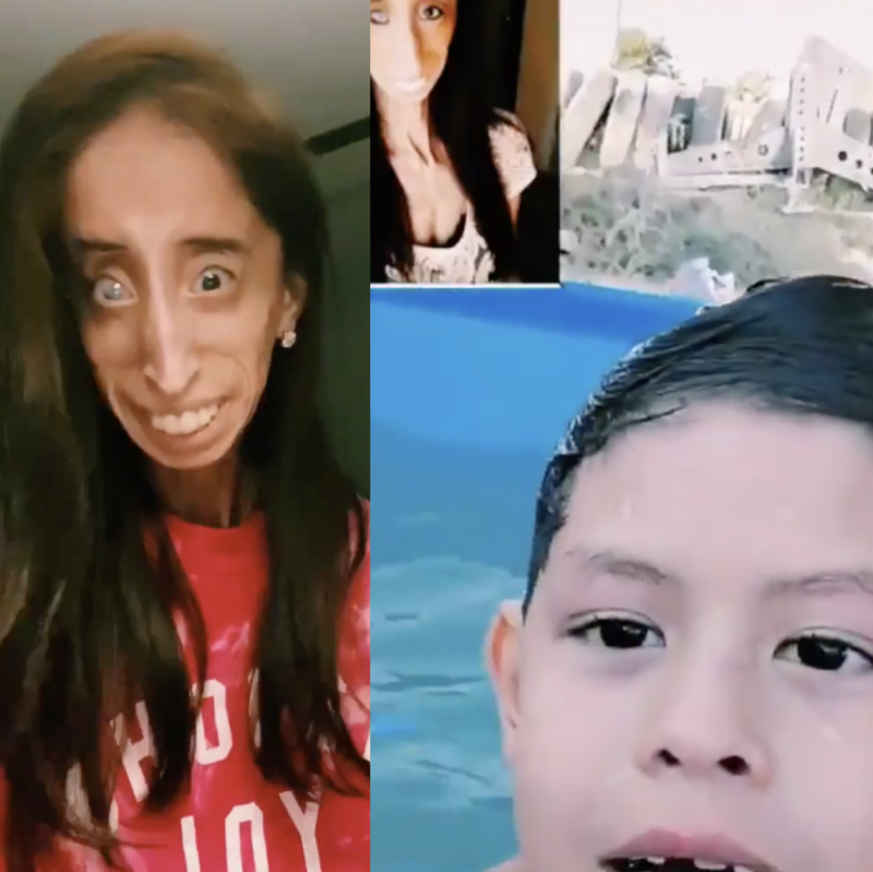 Anti-bullying and disability activist speaks out against hurtful TikTok trend. (Photo: Twitter)
