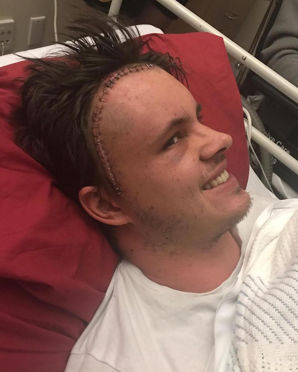 home and away star Johnny ruffo diagnosed with brain cancer in 2017