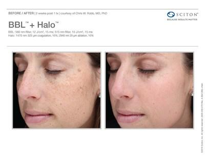 Before and after one Halo treatment (PRNewsfoto/Sciton)