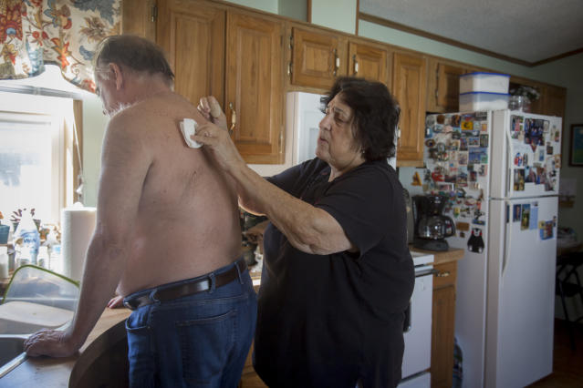 Anne Scherer cares for Alan at their home in West Des Moines, Iowa. (Rachel Mummey for HuffPost)