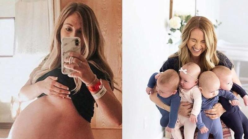 Quadruplet mom 'shocked' by viral response to her side-by-side photos