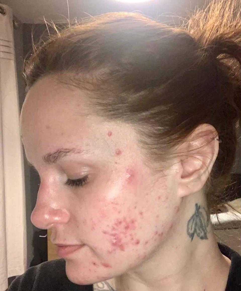Kerrie, pictured in early summer 2020, believes her spots were worsened by mask wearing. PA REAL LIFE/ COLLECT