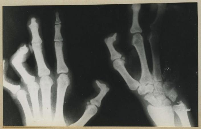 This x-ray of the hands of someone with leprosy was taken in Thailand. The disease causes deformities and contractures, seen here.