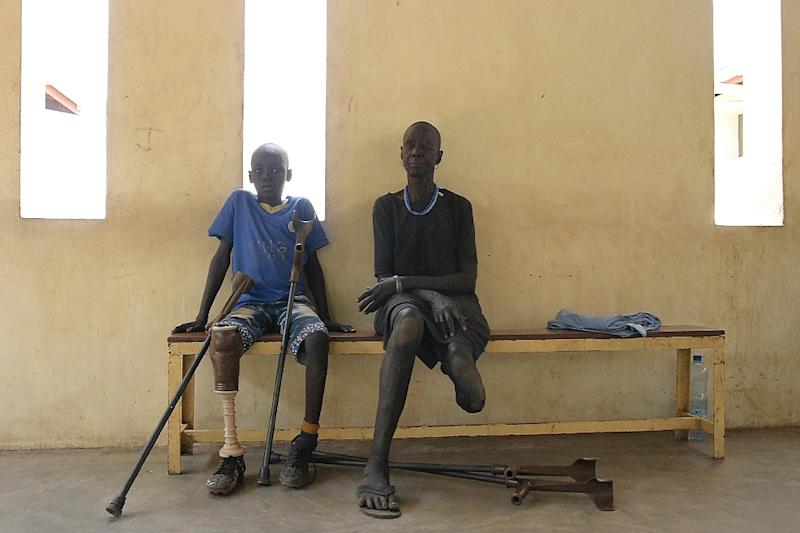 Gunshot wound survivors Jal Keat, 12, left, and Nyagn Thyuong, wait at the Red Cross rehabilitation centre in Juba (AFP Photo/SIMON MAINA)