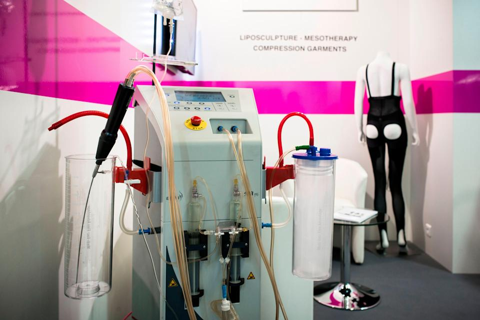 Representational: The influencer developed a flesh eating bacterial infection following the liposuction surgery (AFP via Getty Images)