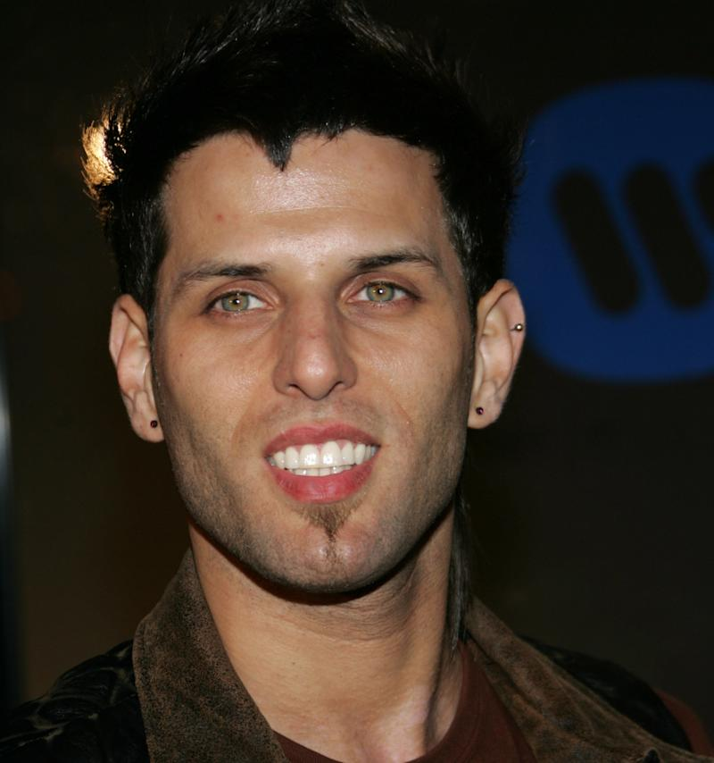 LFO singer Devin Lima has been diagnosed withstage 4 adrenal cancer, his band announcedon Monday.