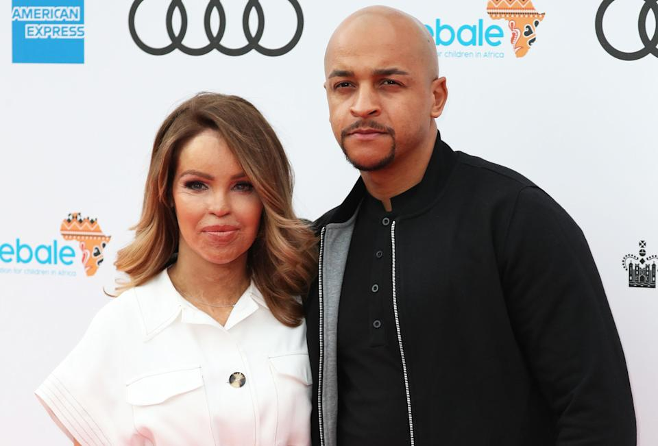 Katie Piper and husband Richard Sutton have two daughters. (Getty Images)