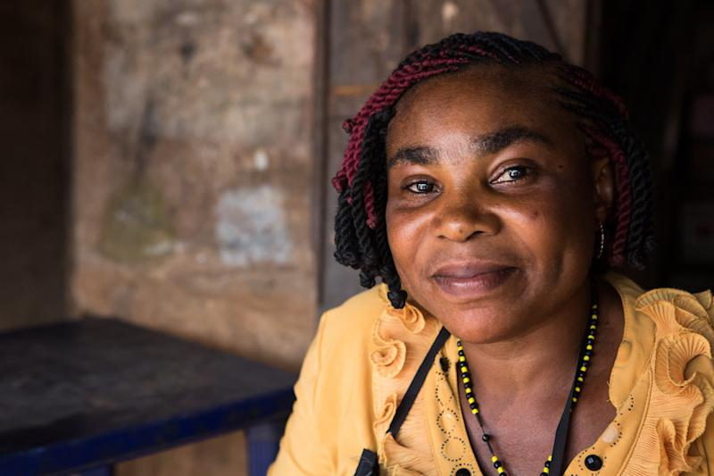 Ndidi Ekeanyawu paid a traditional healer every two weeks to drain the fluid from her legs.But she saw no improvement in her condition. (The Carter Center / R McDowell)