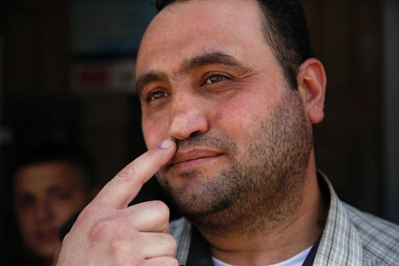 Palestinian Hitler Abu Hamad, deputy head at a West Bank school, points at his nose, which was allegedly broken when he was 15 by an Israeli army officer who asked him his name (AFP Photo/HAZEM BADER)