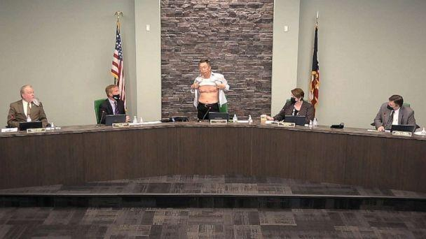 PHOTO: Lee Wong, a township trustee in West Chester, Ohio, lifts his shirt to show scars from his military service, March 23, 2021, in response to those who question his patriotism. (West Chester Township via Storyful)