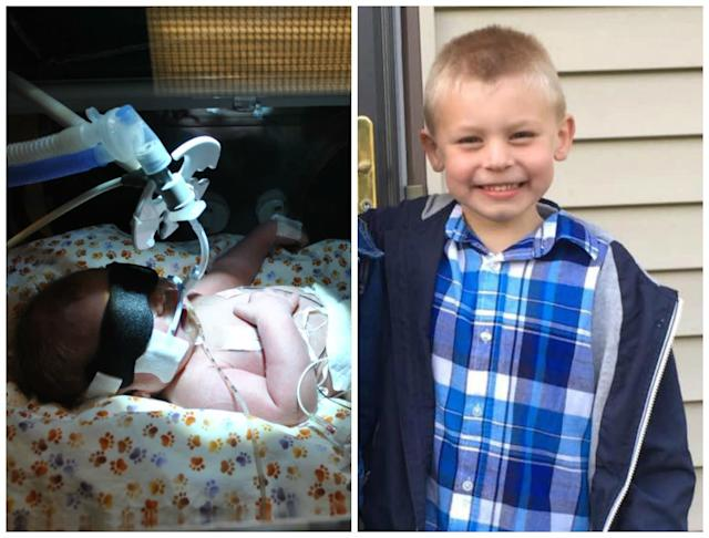 Adam Robert Diehl was born at 34 weeks due to preterm labor. He weighed 6 pounds, 7 ounces. During his stay in the NICU he developed RDS and required intubation for three days. After 19 days, we were able to bring him home. Today he is a smart, sweet, healthy 5-year-old.<br><br><i>--Crystal Diehl</i>