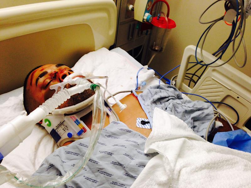 This undated photo provided by his family's attorney on Friday, Oct. 4, 2013 shows Edwin Mieses Jr. after he was struck by an SUV during a motorcycle rally in New York that turned violent on Sunday, Sept. 29, 2013. He suffered a broken spine, fractured ribs, a punctured lung and a torn aortic valve, his defense attorney, Gloria Allred, said Friday. His injuries may have left him paralyzed. (AP Photo/Family Photo via Gloria Allred)