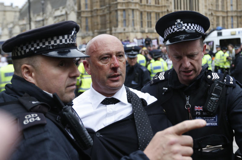 A British National Party (BNP) member that was attacked by anti-fascist demonstrators is removed by police officers during a demonstration in central London, Saturday, Jun. 1, 2013. British National Party supporters gathered to protest the May 22 killing of British soldier Lee Rigby. (AP Photo/Lefteris Pitarakis)