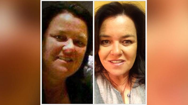 Rosie O'Donnell and Other Extreme Diet Stars