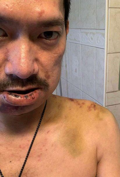 PHOTO: Kylam Nguyen, a Vietnamese American, was assaulted in a hate-fueled attack. (Kylam Nguyen)