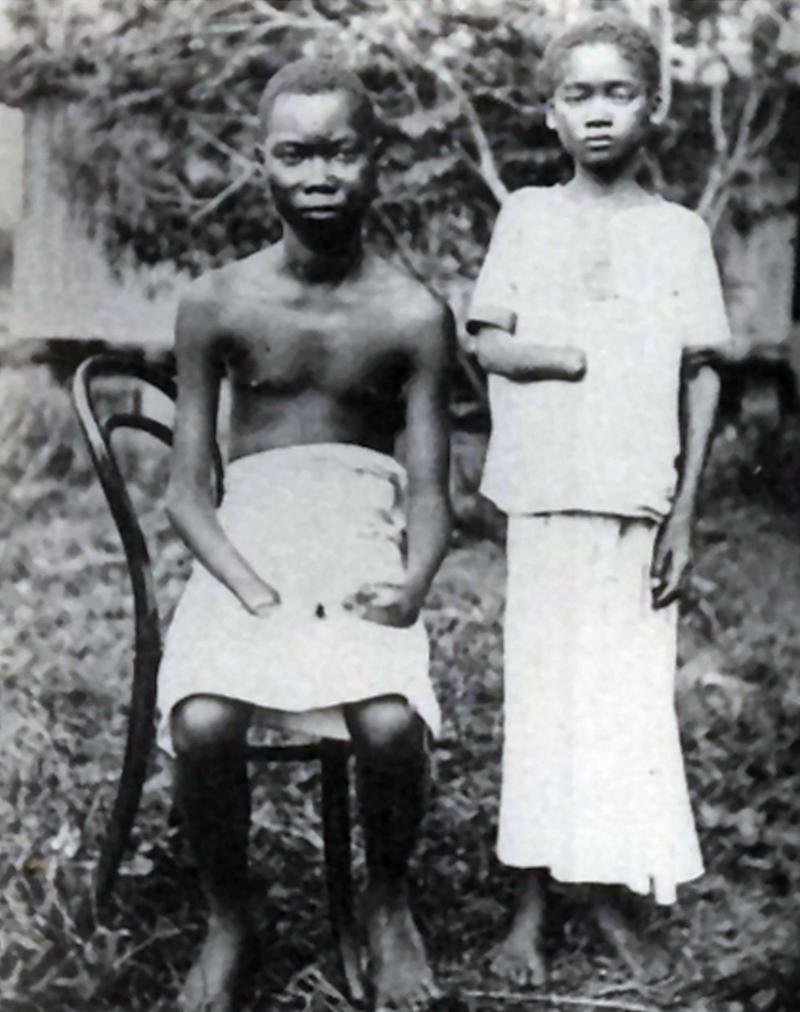 Amputation was frequently used to punish workers in the Congo Free State - Universal History Archive/Universal Images Group Editorial