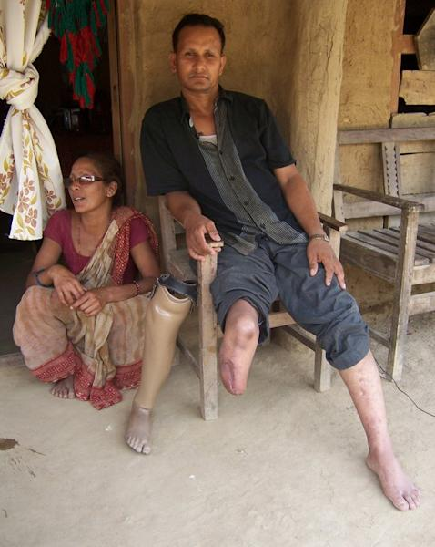 "This handout photo shows Nepalese torture victim Ashok Sodari, 35, at his home in Sanoshree, a village in the southern district of Bardiya, in July 2012. His story forms part of ""The Resurrected"", a chilling new documentary by Kathmandu-based film-maker Ganesh Pandey"