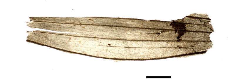 This undated microscope photo provided by the South Tyrol Museum of Archaeology in July 2018 shows part of a wheat grain spikelet found in the stomach of the frozen hunter known as Oetzi the Iceman in Italy. The scale bar indicates 500 microns. In a report released on Thursday, July 12, 2018, scientists said the analysis offers a snapshot of what ancient Europeans ate more than five millennia ago. (Marco Samadelli/Eurac/South Tyrol Museum of Archaeology via AP)