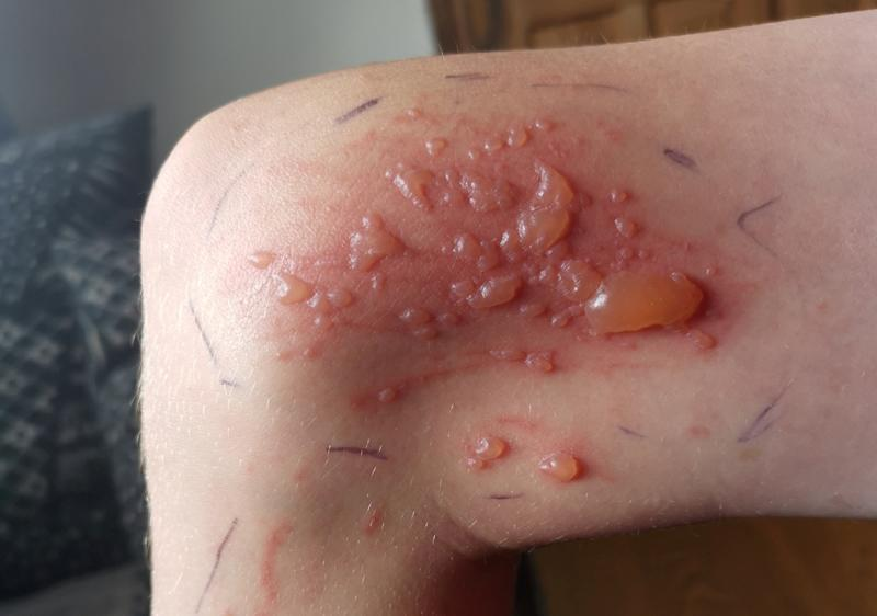Doctors have told Jayden that he could be left with scarring from the blisters. (SWNS)
